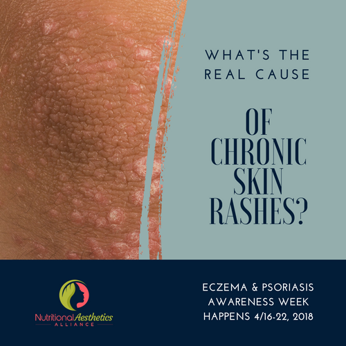 What's the Real Cause of Chronic Skin Rashes