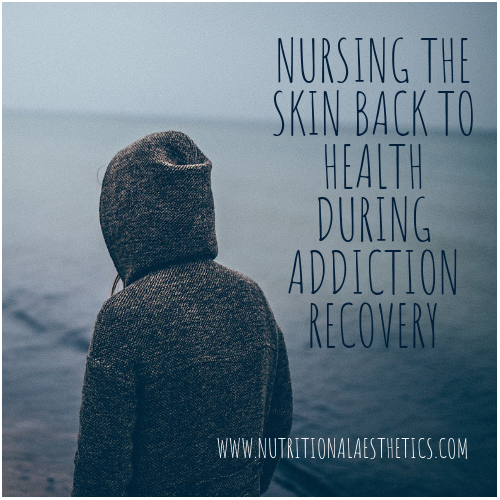 Nursing the Skin Back to Health During Addiction Recovery-2