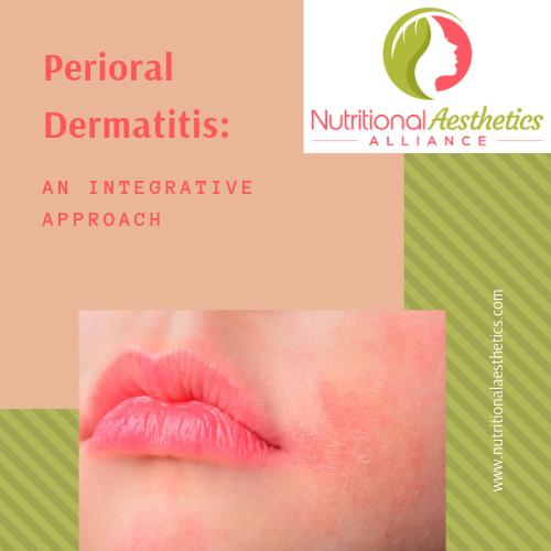 Integrative Treatment Options for Perioral Dermatitis